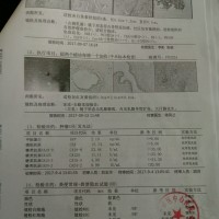 邓玉兰_右侧乳腺癌(pT1NOMO)_证明材料