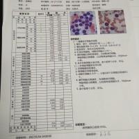 刘梅花_急性单核细胞白血病(AML-M5b)_证明材料